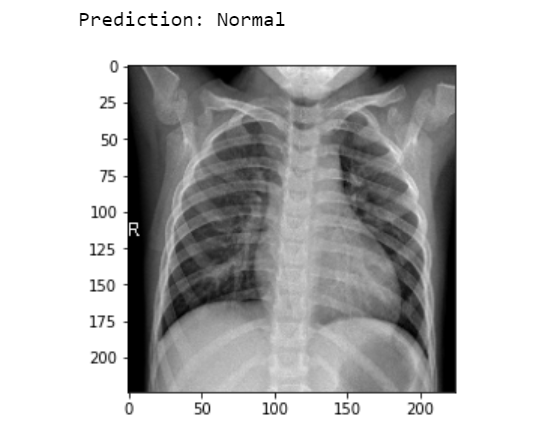 Detection of COVID-19 From Chest X-Ray Images Using Machine Learning