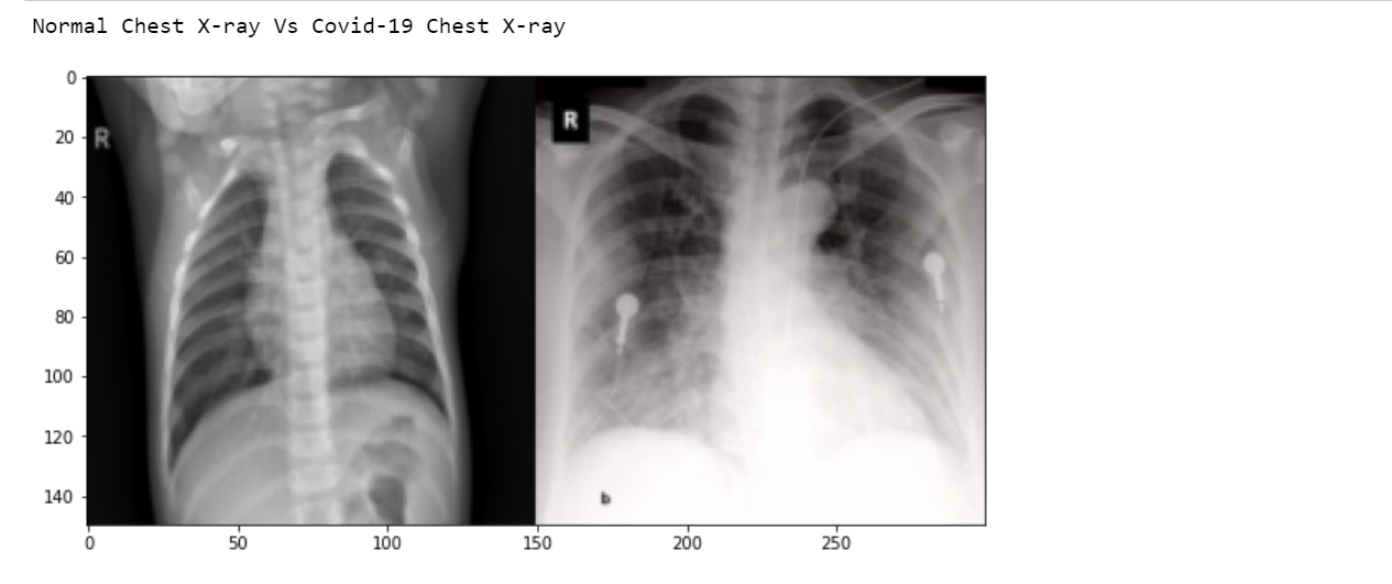 X-rays normal vs covid-19